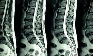 Spine And Nerve Pain MRI